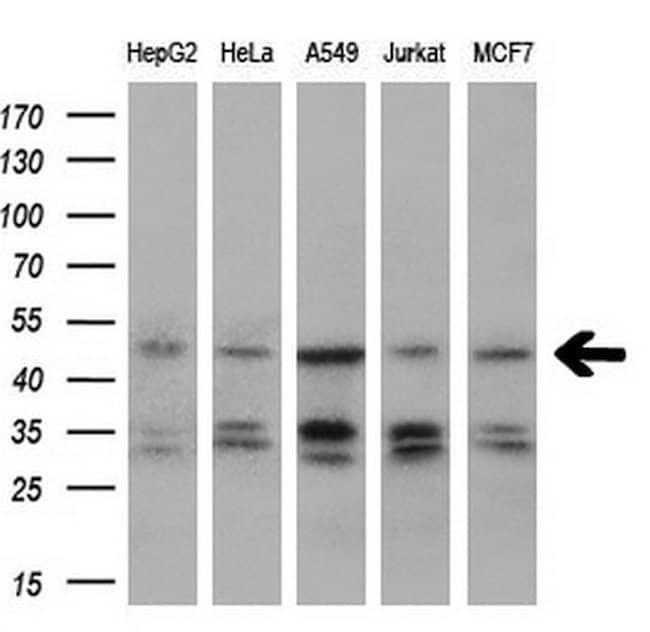 IGBP1 Mouse anti-Human, Clone: OTI4F6, liquid, TrueMAB  100 µL; Unconjugated