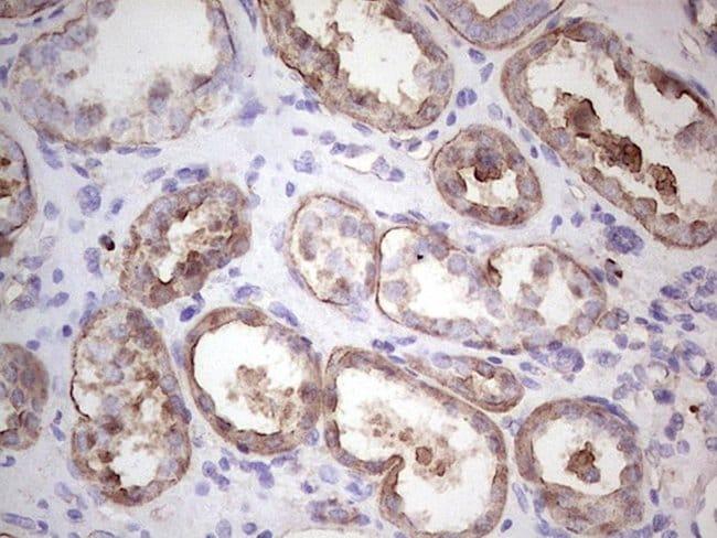 IGF1 Mouse anti-Human, Clone: OTI4B12, lyophilized, TrueMAB  100 µg;