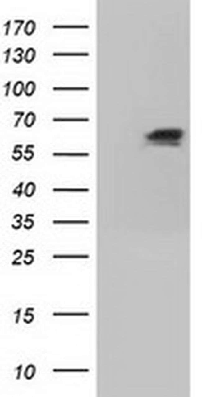 IGF2BP2 Mouse anti-Canine, Human, Clone: OTI4C4, liquid, TrueMAB  100 µL;