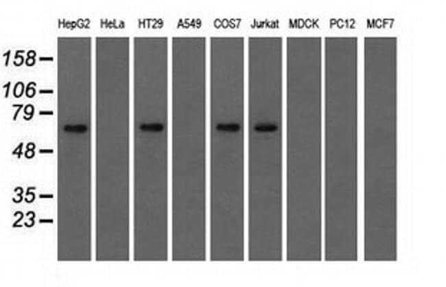 IGF2BP2 Mouse anti-Human, Clone: OTI5G3, liquid, TrueMAB  100 µL;