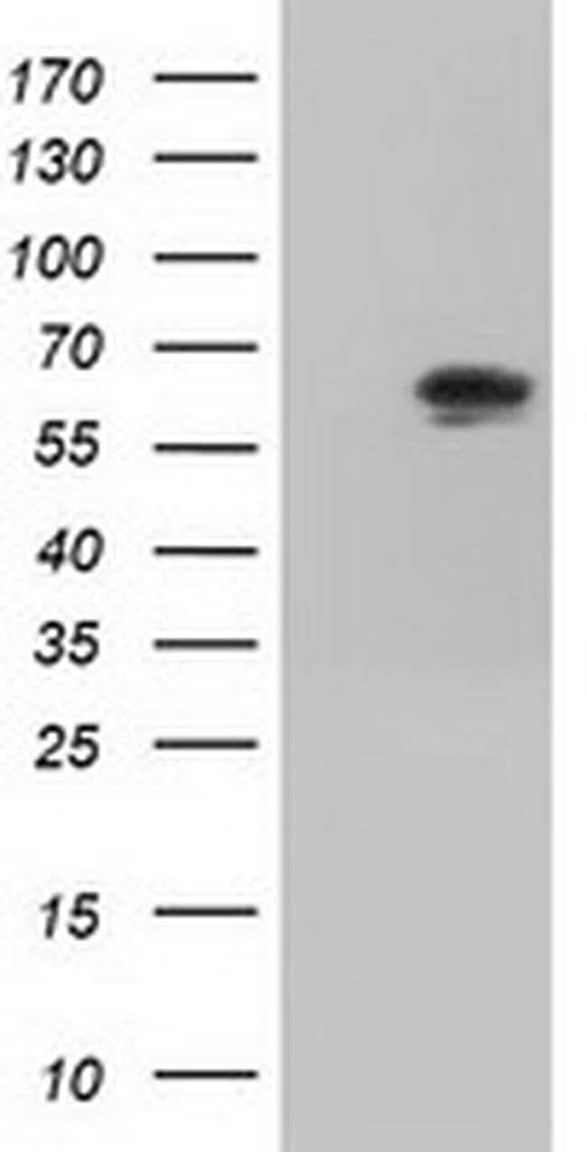 IGF2BP2 Mouse anti-Canine, Human, Clone: OTI3F9, liquid, TrueMAB  100 µL;