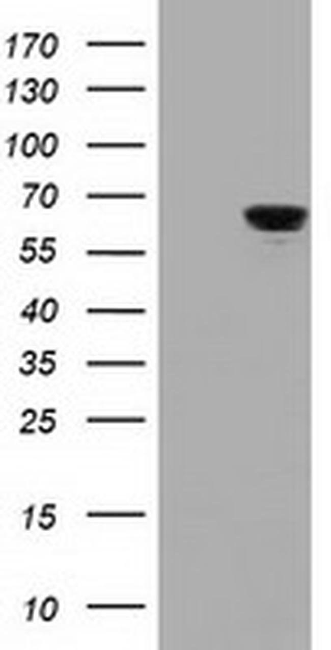 IGF2BP2 Mouse anti-Human, Clone: OTI4D10, liquid, TrueMAB  30 µL;