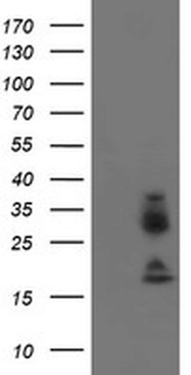 IGJ Mouse anti-Human, Clone: OTI3C7, liquid, TrueMAB  100 µL; Unconjugated
