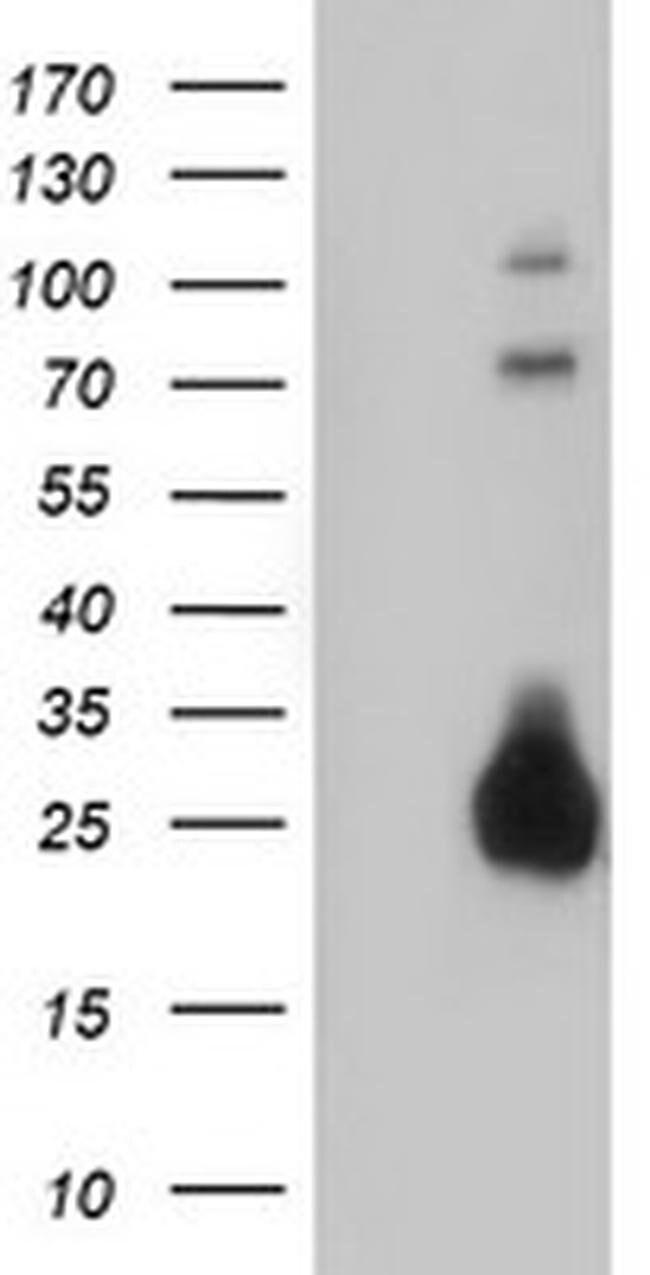 IGJ Mouse anti-Human, Clone: OTI2B1, liquid, TrueMAB  100 µL; Unconjugated