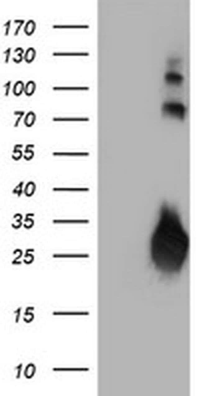 IGJ Mouse anti-Human, Clone: OTI3B3, liquid, TrueMAB  100 µL; Unconjugated