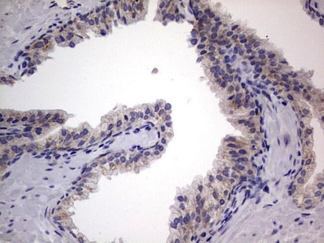 IGSF11 Mouse anti-Human, Clone: OTI2H1, lyophilized, TrueMAB  100 µg;