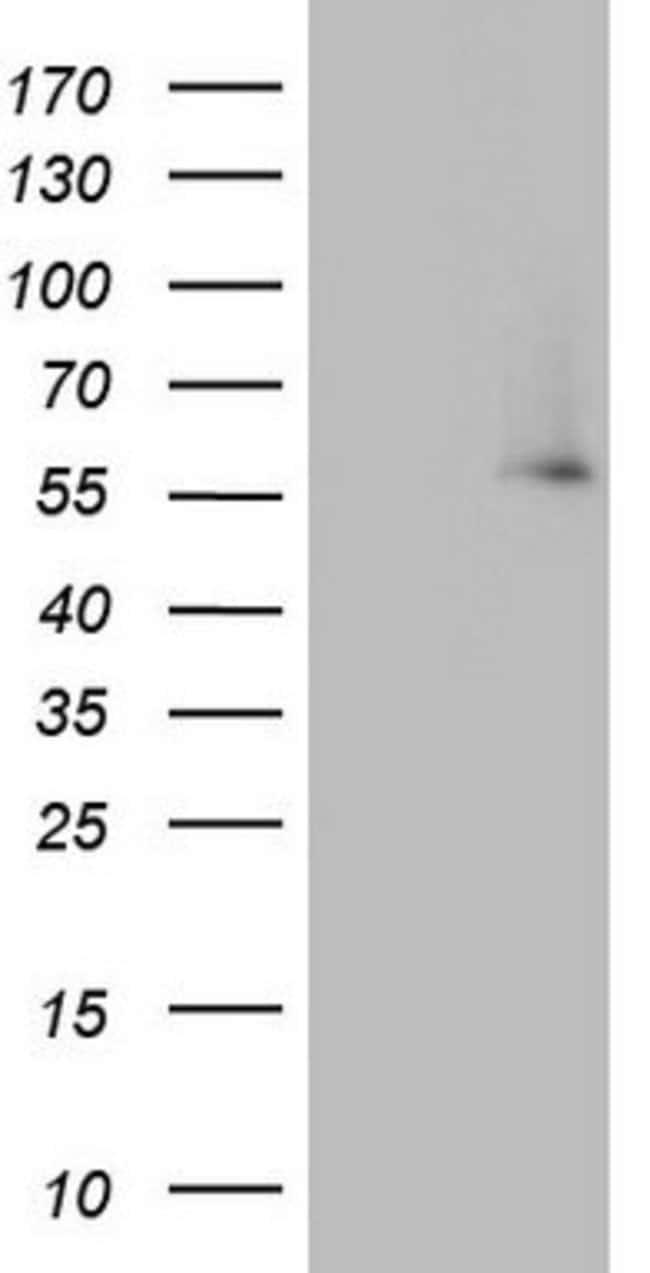 IKZF3 Mouse anti-Human, Clone: OTI1E1, lyophilized, TrueMAB  100 µg;