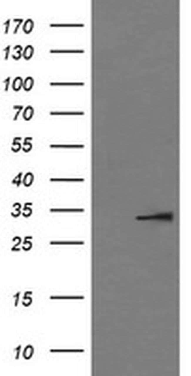 IL1B Mouse anti-Human, Clone: OTI3E1, liquid, TrueMAB  100 µL; Unconjugated