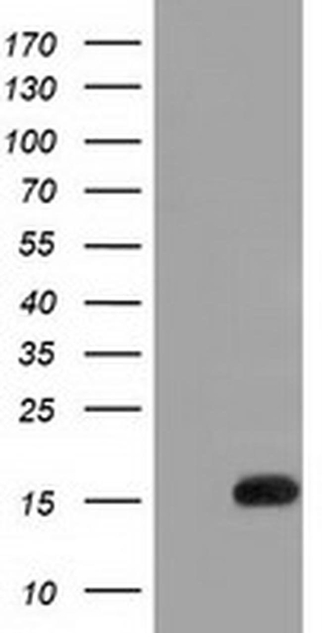 IL1F6 Mouse anti-Human, Clone: OTI1A4, liquid, TrueMAB  100 µL; Unconjugated