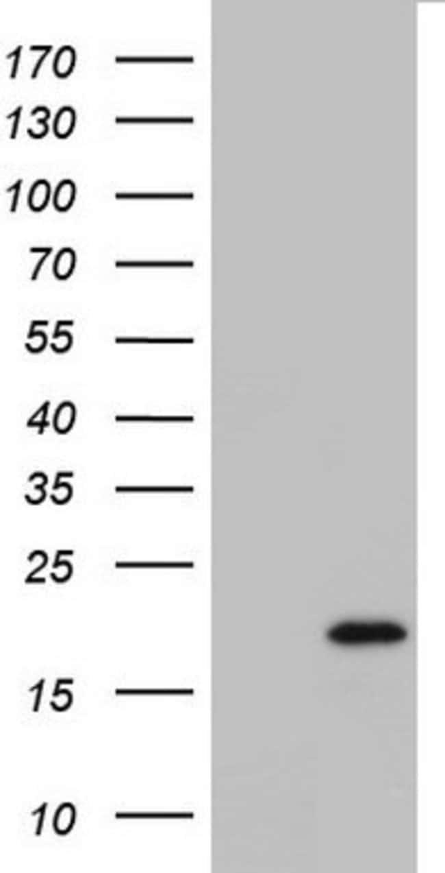 IL20 Mouse anti-Human, Clone: OTI4C2, lyophilized, TrueMAB  100 µg;
