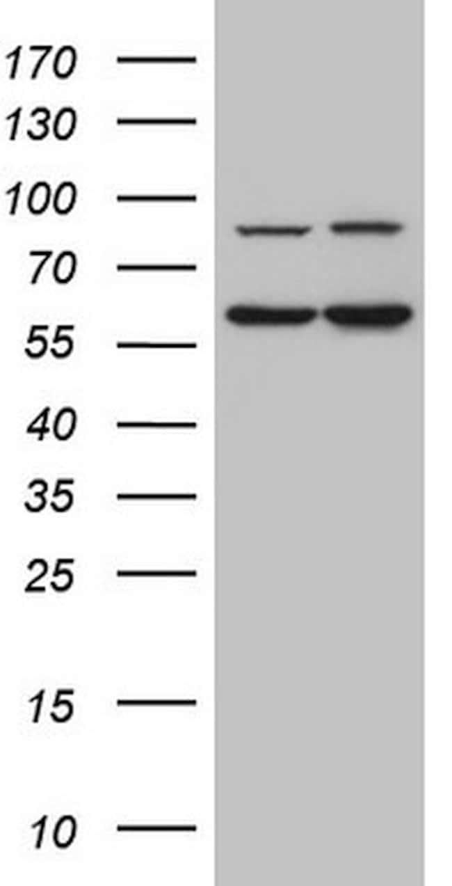 IL23R Mouse anti-Human, Clone: OTI5H9, lyophilized, TrueMAB  100 µg;