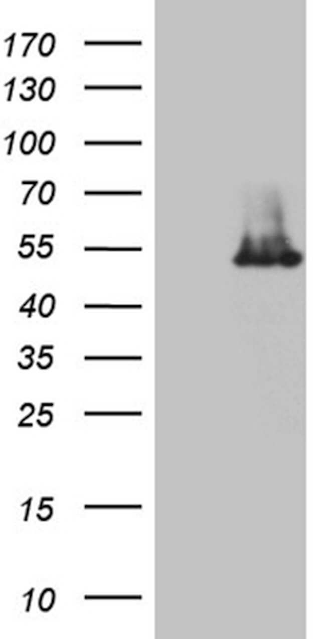IP6K2 Mouse anti-Human, Clone: OTI1F12, lyophilized, TrueMAB  100 µg;
