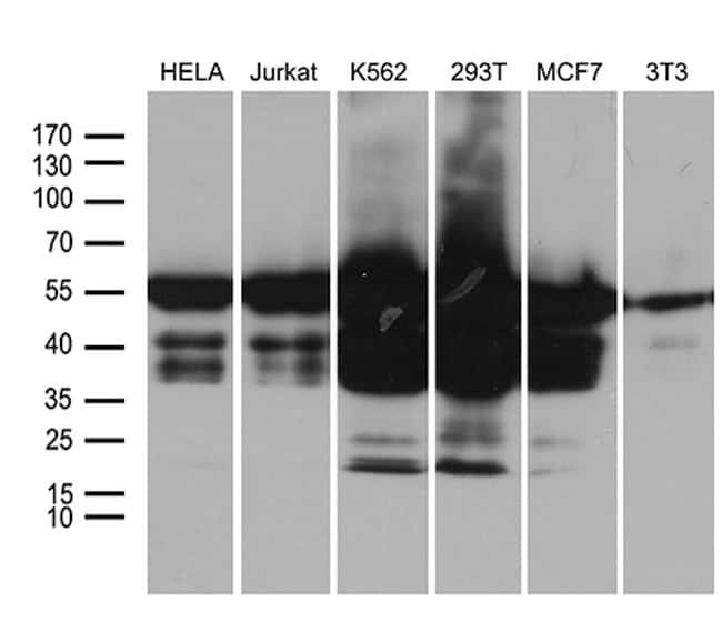 IRF3 Mouse anti-Human, Clone: OTI8G9, lyophilized, TrueMAB  100 µg;
