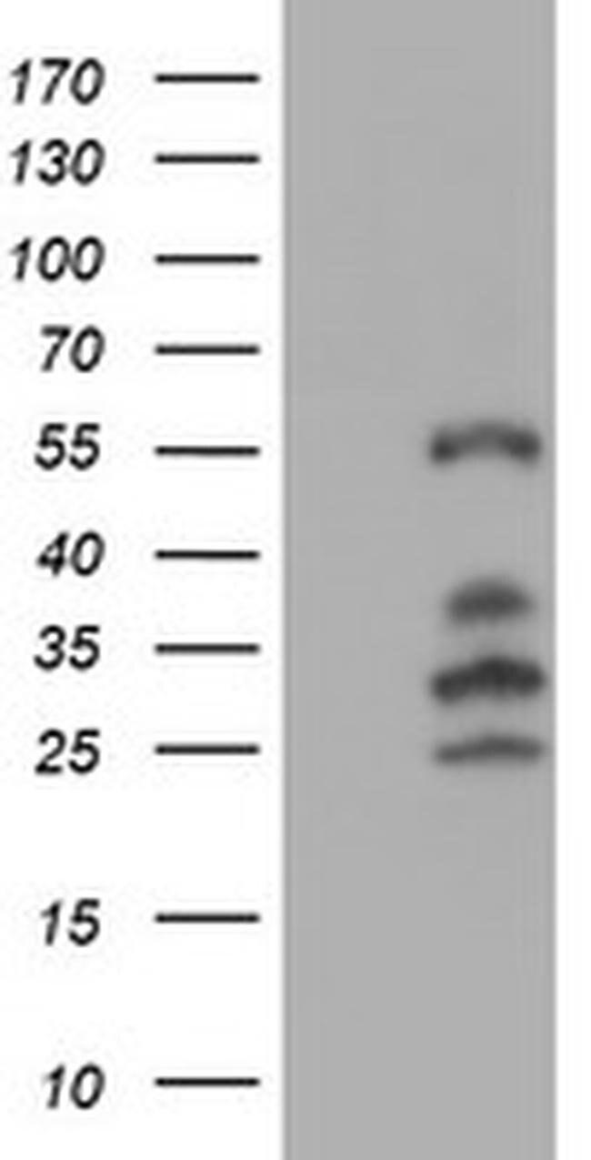 IRF6 Mouse anti-Canine, Human, Rat, Clone: OTI2C10, liquid, TrueMAB  100