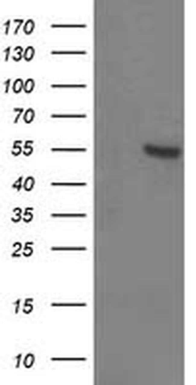 ITFG2 Mouse anti-Human, Clone: OTI3E10, liquid, TrueMAB  100 µL; Unconjugated