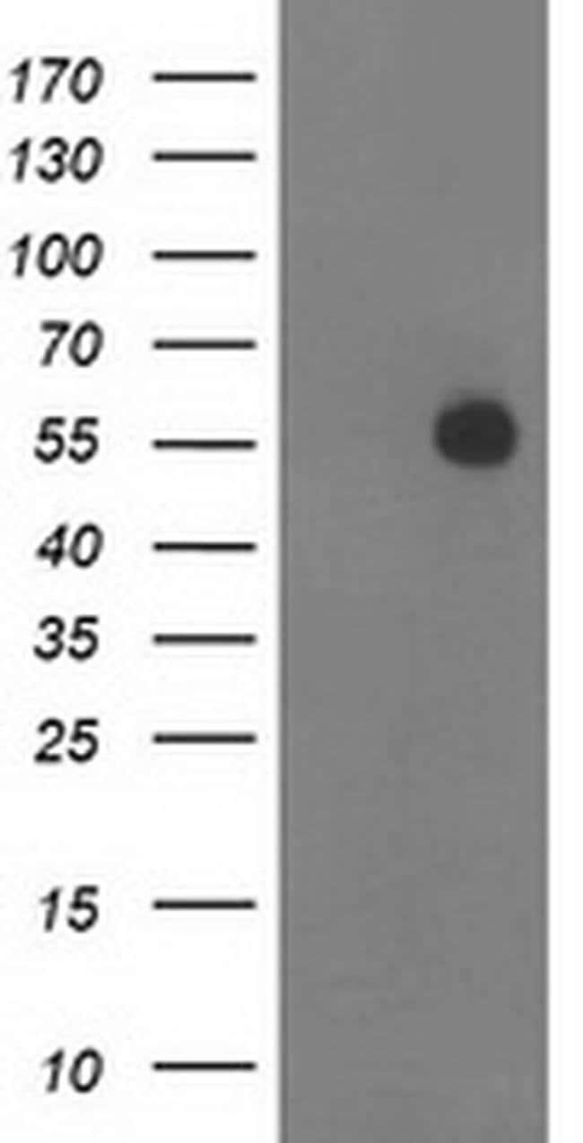 ITFG2 Mouse anti-Human, Clone: OTI3G4, liquid, TrueMAB  100 µL; Unconjugated