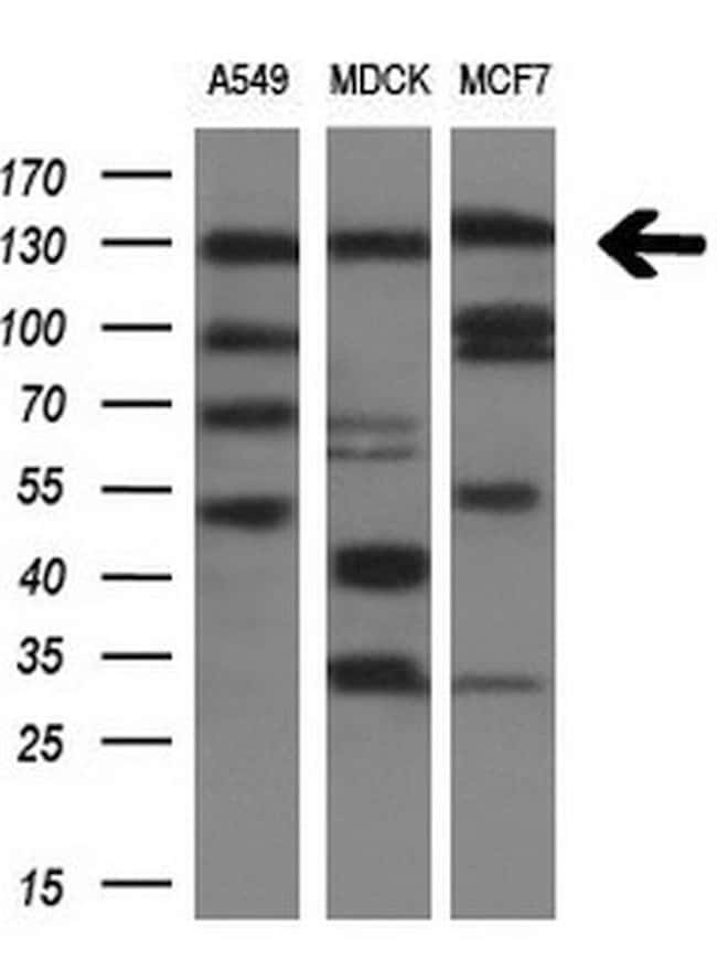 ITGAM Mouse anti-Human, Clone: OTI2D11, lyophilized, TrueMAB  100 µg;