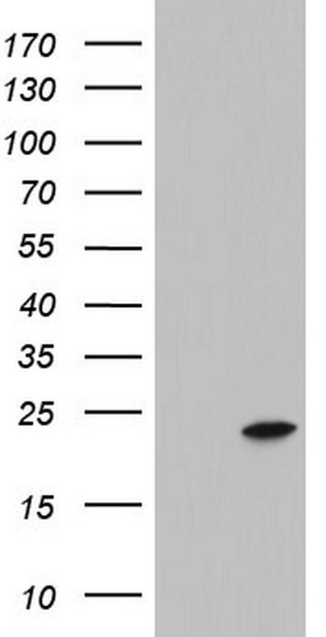 ITGB1BP1 Mouse anti-Human, Clone: OTI6A12, lyophilized, TrueMAB  100 µg;