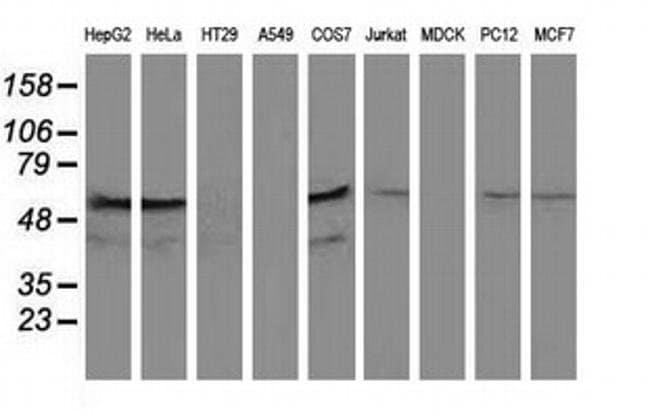 KATNAL1 Mouse anti-Human, Rat, Clone: OTI1A7, liquid, TrueMAB  100 µL;