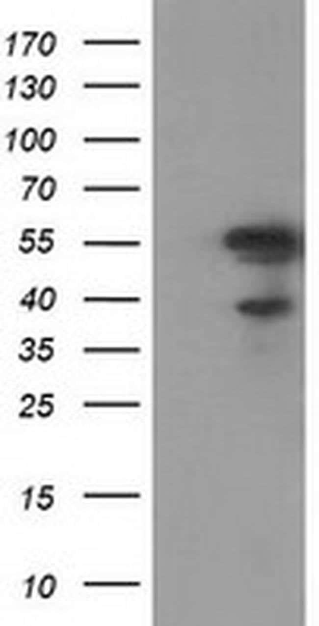 KATNAL1 Mouse anti-Human, Clone: OTI6A4, liquid, TrueMAB  100 µL;