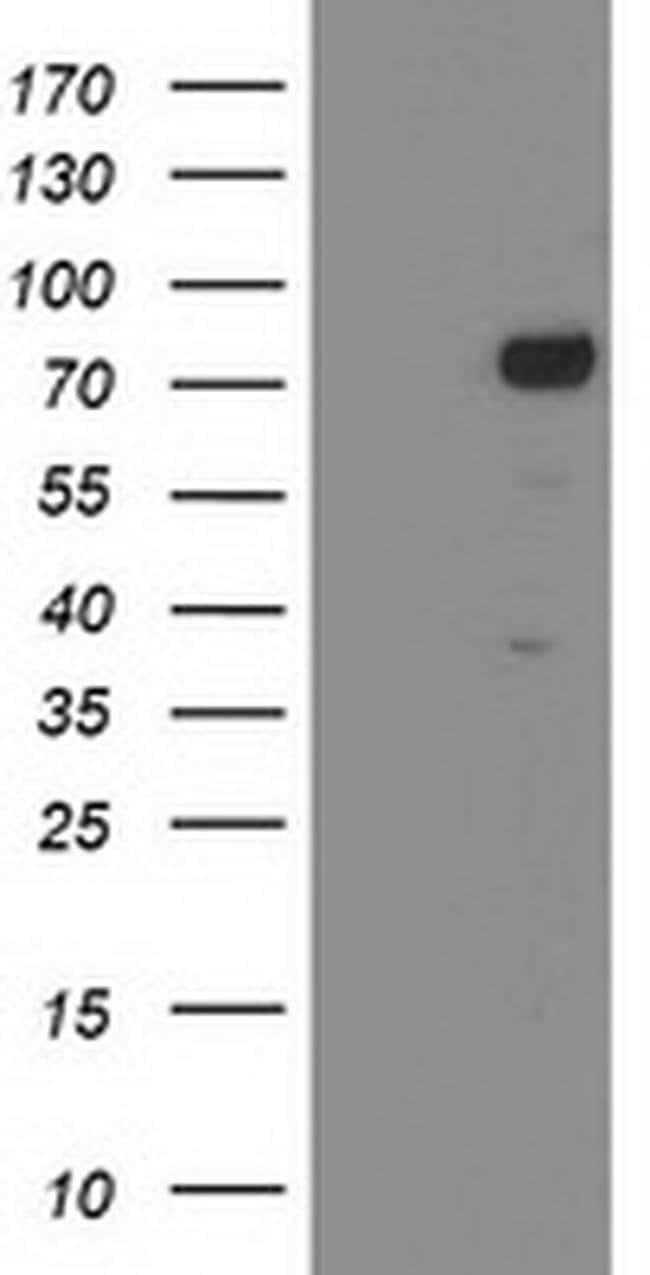 KATNB1 Mouse anti-Human, Clone: OTI5A1, liquid, TrueMAB  100 µL; Unconjugated