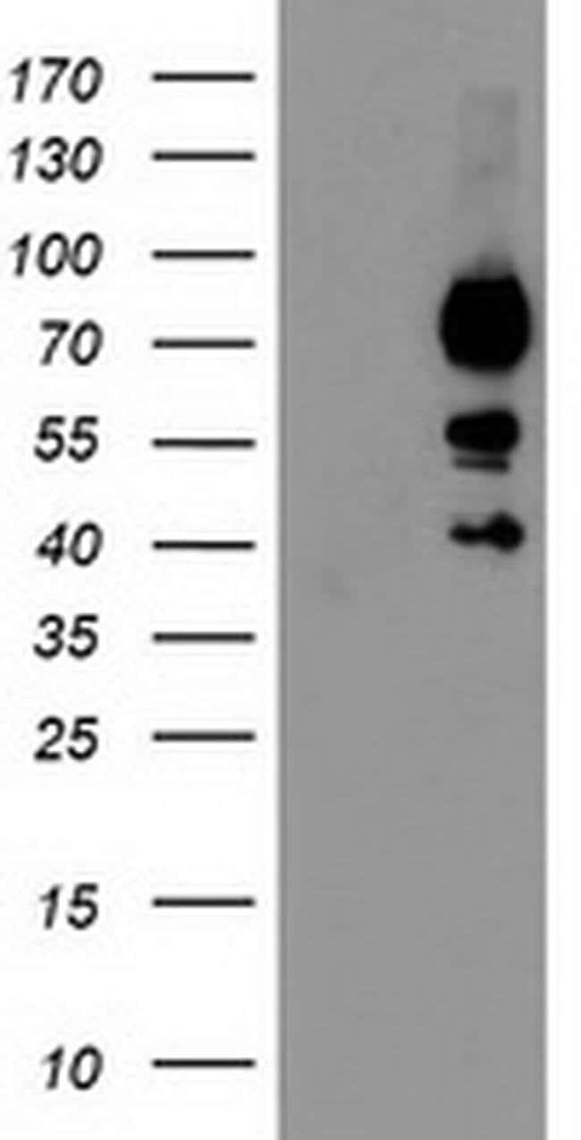 KATNB1 Mouse anti-Human, Clone: OTI5H6, liquid, TrueMAB  100 µL; Unconjugated