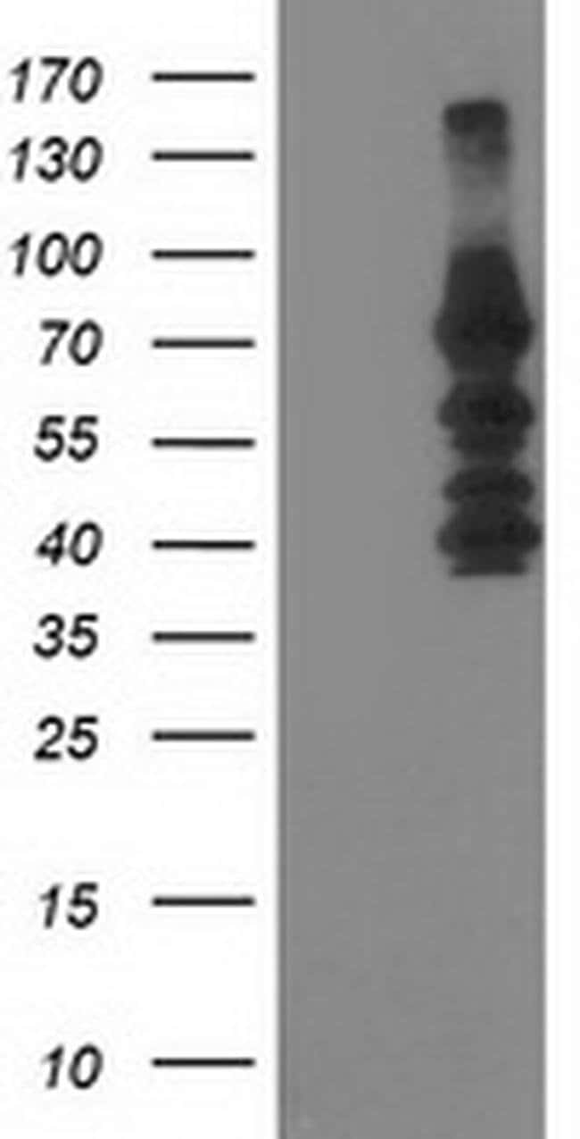 KATNB1 Mouse anti-Human, Clone: OTI5F9, liquid, TrueMAB  100 µL; Unconjugated