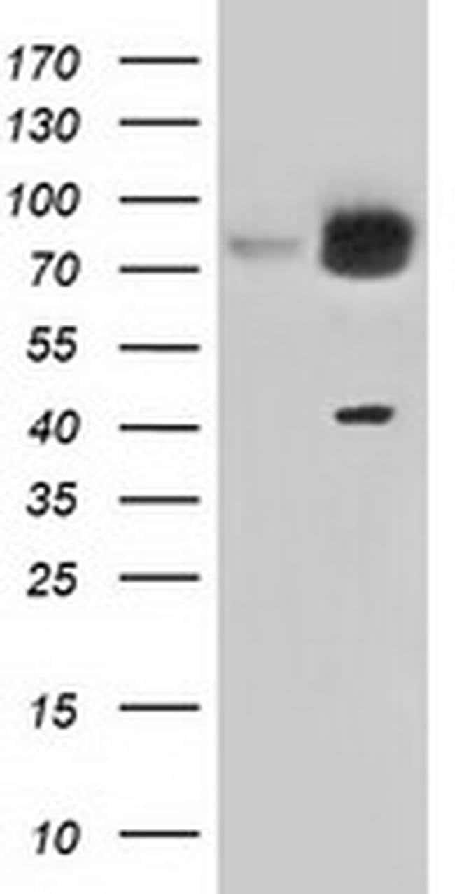 KBTBD7 Mouse anti-Canine, Human, Rat, Clone: OTI1G3, liquid, TrueMAB  100