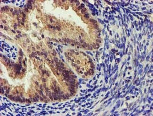 KCNAB1 Mouse anti-Human, Clone: OTI7F12, liquid, TrueMAB  100 µL;