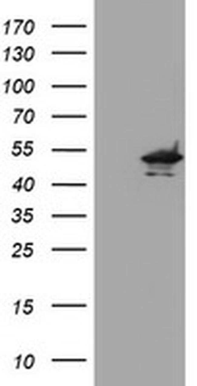 KCNAB1 Mouse anti-Human, Clone: OTI2A8, liquid, TrueMAB  100 µL; Unconjugated