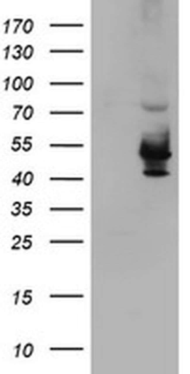 KCNAB1 Mouse anti-Human, Clone: OTI4E7, liquid, TrueMAB  100 µL; Unconjugated