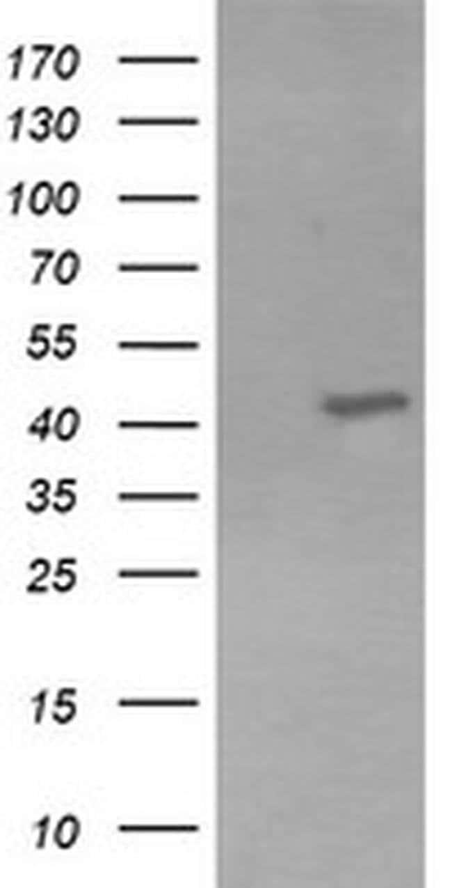 KCNAB1 Mouse anti-Human, Clone: OTI2F1, liquid, TrueMAB  100 µL; Unconjugated