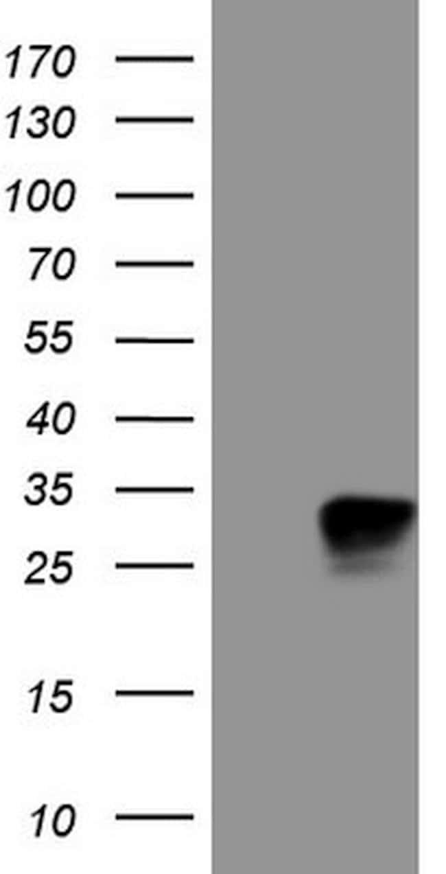 KCNIP2 Mouse anti-Human, Clone: OTI10H1, lyophilized, TrueMAB  100 µg;