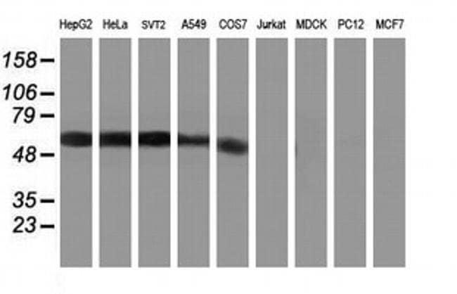 KCNJ3 Mouse anti-Human, Mouse, Clone: OTI3E11, liquid, TrueMAB  100 µL;