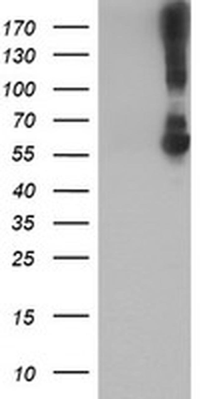 KCNJ3 Mouse anti-Human, Clone: OTI1G3, liquid, TrueMAB  100 µL; Unconjugated