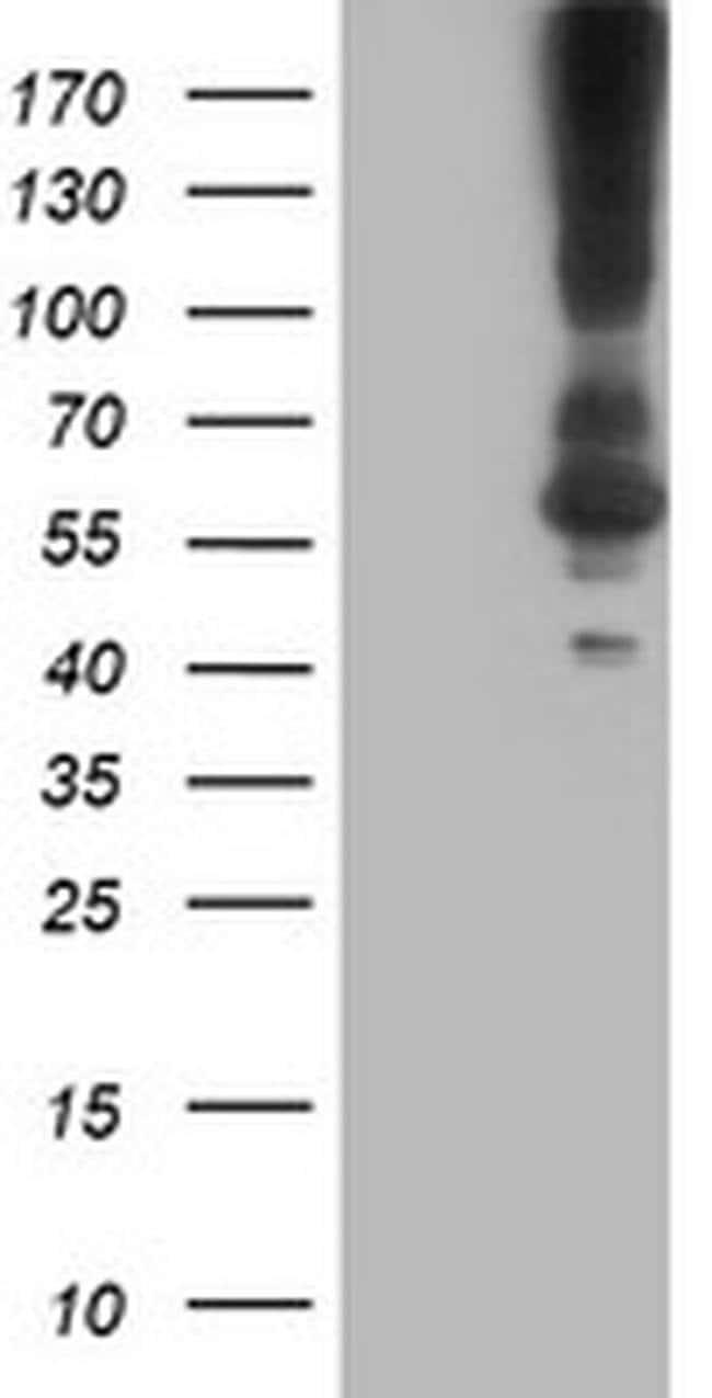 KCNJ3 Mouse anti-Human, Clone: OTI1G2, liquid, TrueMAB  100 µL; Unconjugated