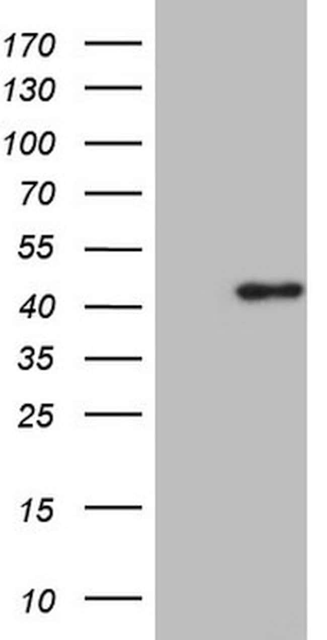KCTD13 Mouse anti-Human, Clone: OTI7D5, lyophilized, TrueMAB  100 µg;