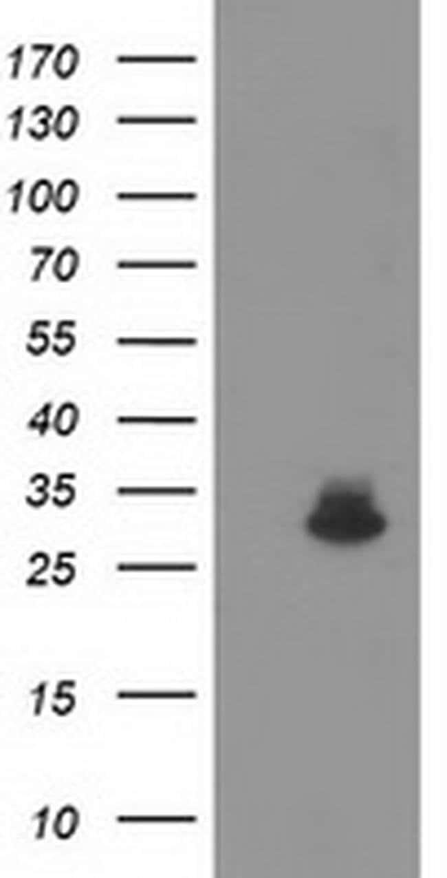 KCTD14 Mouse anti-Human, Clone: OTI3F5, liquid, TrueMAB  100 µL; Unconjugated