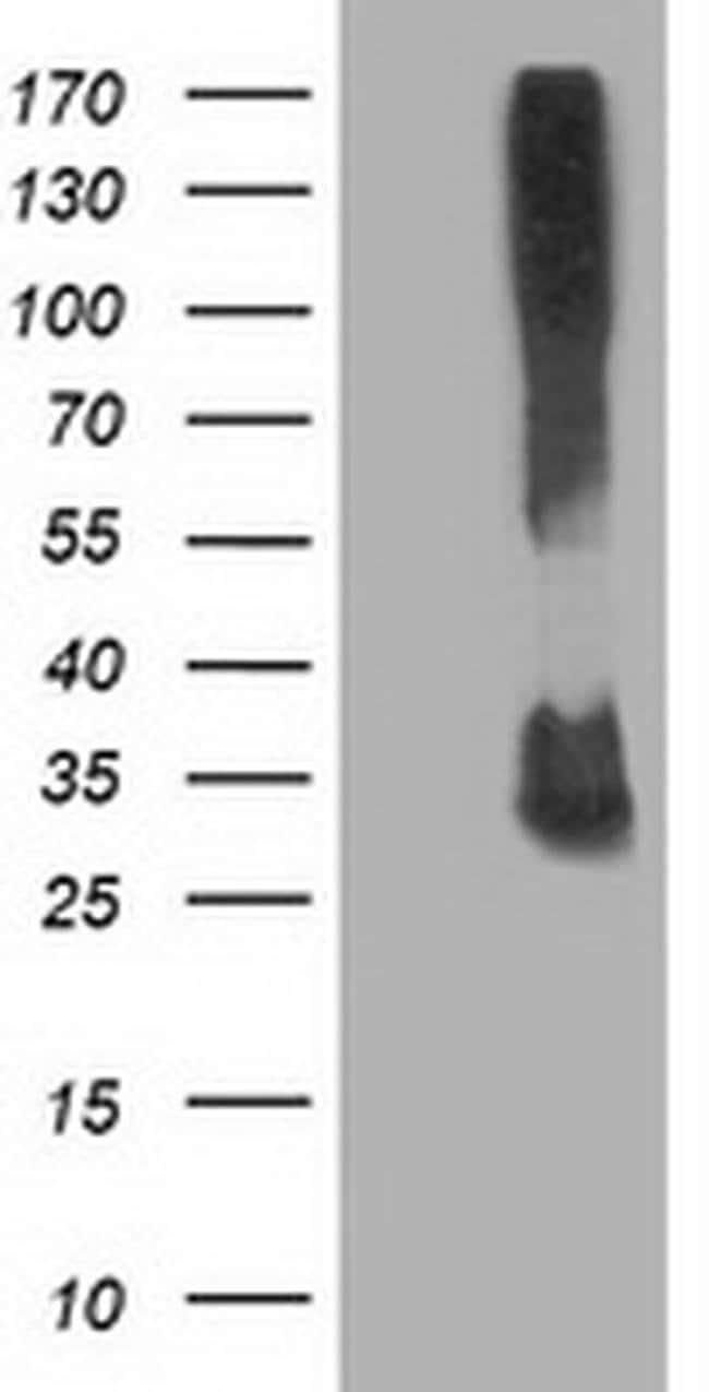 KCTD14 Mouse anti-Human, Clone: OTI2A6, liquid, TrueMAB  100 µL; Unconjugated