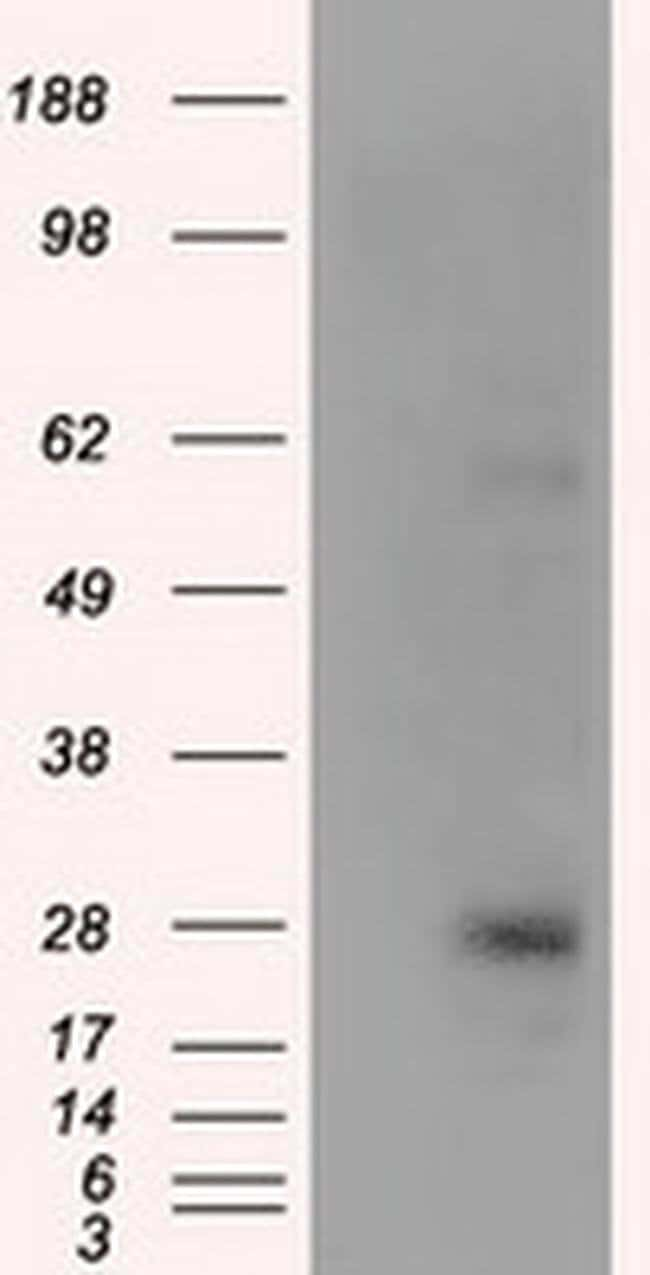 KCTD5 Mouse anti-Human, Clone: OTI3C8, liquid, TrueMAB  100 µL; Unconjugated