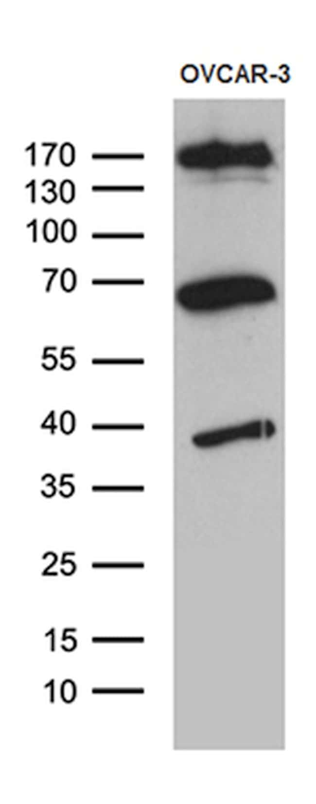 KDELC2 Mouse anti-Human, Clone: OTI5G2, lyophilized, TrueMAB  100 µg;