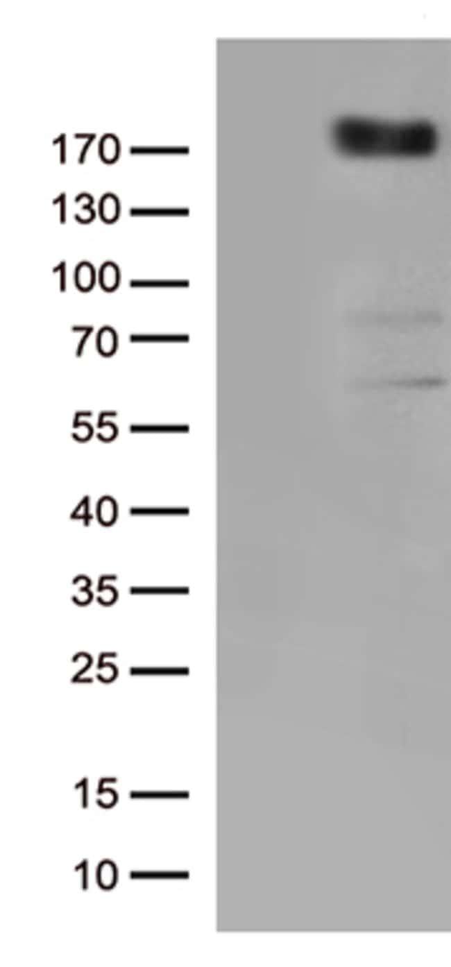 KDR Mouse anti-Human, Clone: OTI2A1, lyophilized, TrueMAB  100 µg;