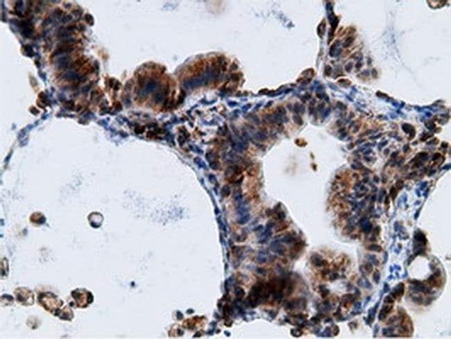 KHK Mouse anti-Human, Clone: OTI3D1, liquid, TrueMAB  100 µL; Unconjugated
