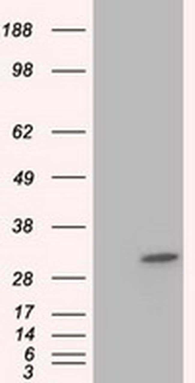 KHK Mouse anti-Human, Clone: OTI4H3, liquid, TrueMAB  100 µL; Unconjugated