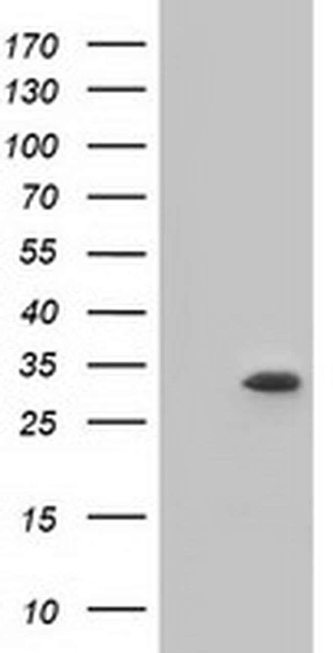 KHK Mouse anti-Human, Clone: OTI2C3, liquid, TrueMAB  100 µL; Unconjugated