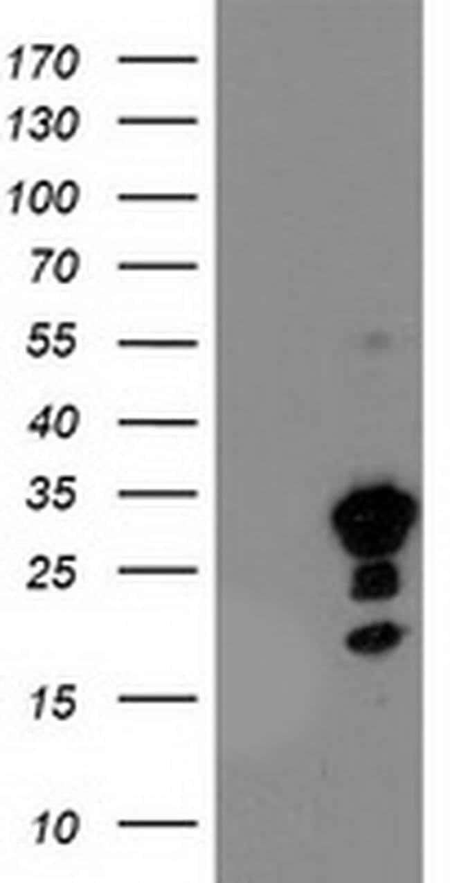 KIAA0495 Mouse anti-Human, Clone: OTI2C2, liquid, TrueMAB  100 µL;