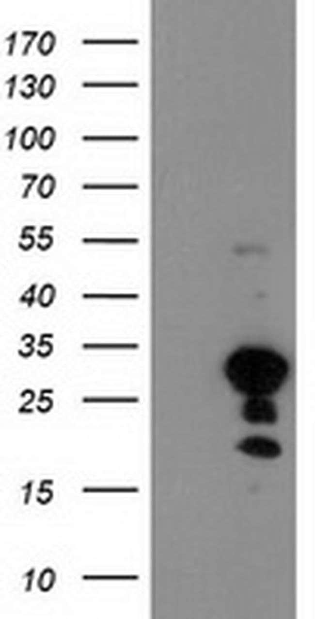 KIAA0495 Mouse anti-Human, Clone: OTI2A2, liquid, TrueMAB  100 µL;