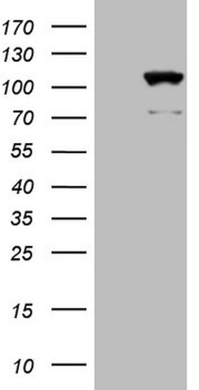 KIAA1524 Mouse anti-Human, Clone: OTI9E6, lyophilized, TrueMAB  100 µg;