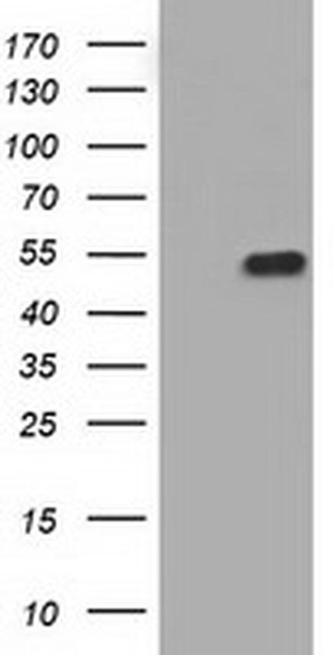 KIAA1609 Mouse anti-Human, Clone: OTI3B1, liquid, TrueMAB  100 µL;