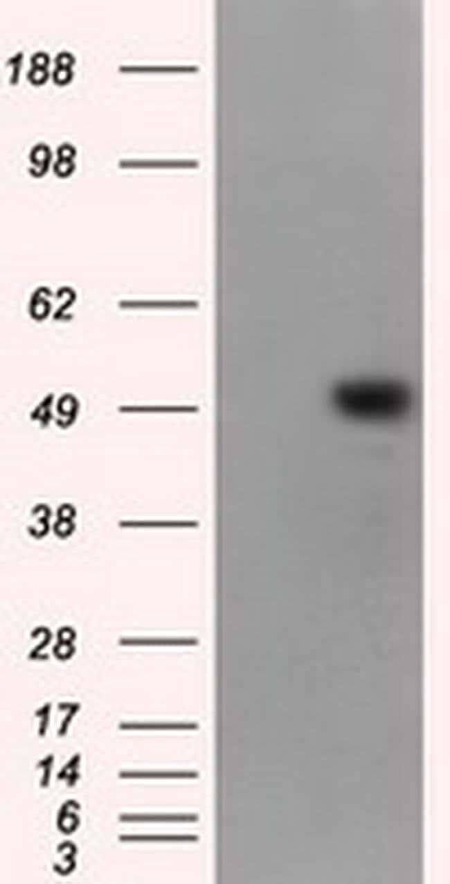 KIAA1609 Mouse anti-Human, Clone: OTI12G10, liquid, TrueMAB  100 µL;